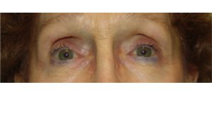Manhattan BLEPHAROPLASTY Before 3